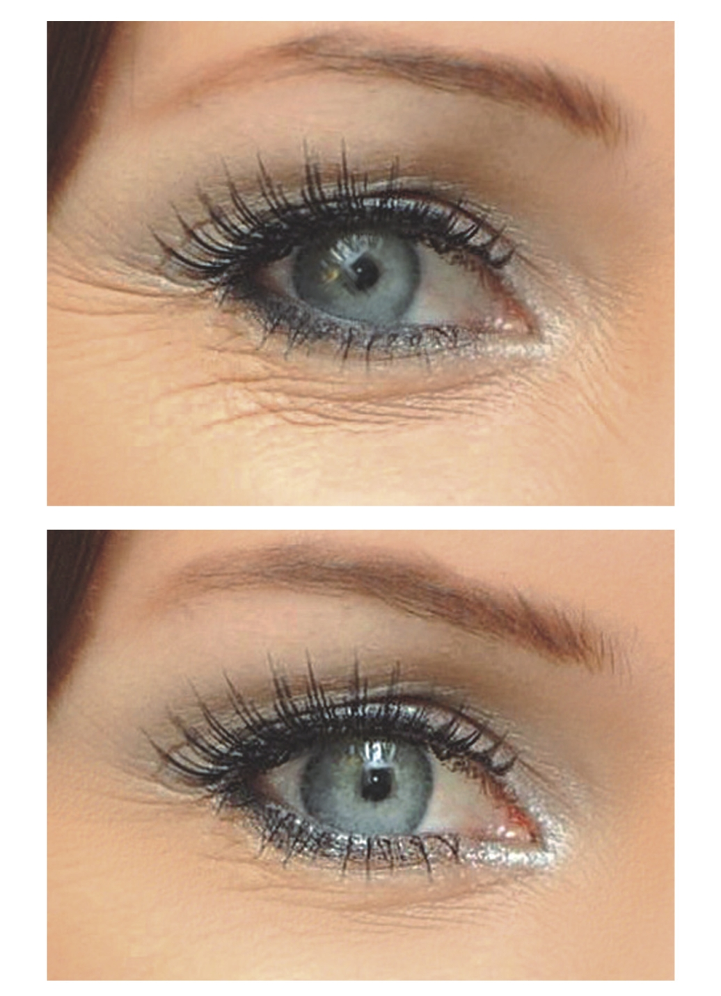 How To Get Rid Of Premature Wrinkles Under Eyes Naturally